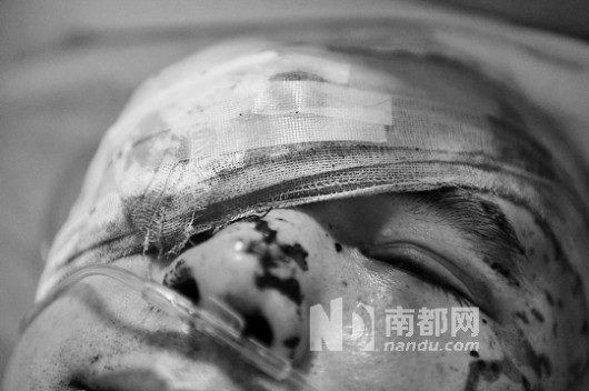Li Jianxin wounded by acid and knives