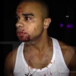 Raz B after nightclub fight