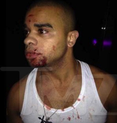 Raz B after nightclub fight
