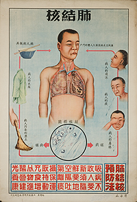 Tuberculosis picture 1
